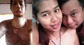 Kejam, Gara-Gara Unggah Foto Selfie Wanita Ini Dibakar Oleh Suaminya