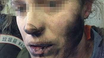 Headphone meledak di tengah penerbangan, seorang perempuan alami luka bakar
