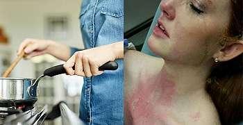 Dada Wanita ini Terluka Bakar Dan Fotonya Menjadi Viral Di Instagram Serta Facebook